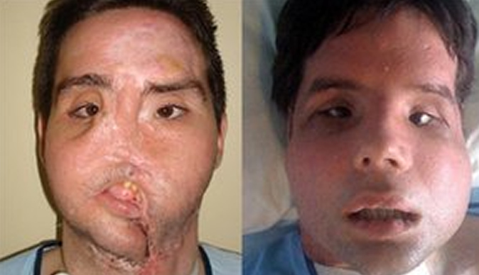 face transplant article
